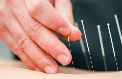 Acupuncture Awareness Day - October 26th